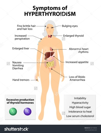 stock-vector-hyperthyroidism-or-over-active-thyroid-hyperthyreosis-signs-and-symptoms-thyroid-dysfunction-332193650