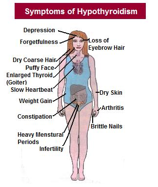 symptoms-of-hypothyroidism
